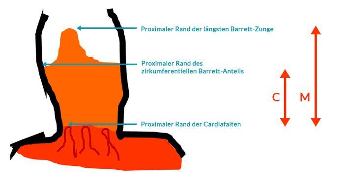 Prag-Klassifikationen des Barrett-Oesophagus-Bild-A
